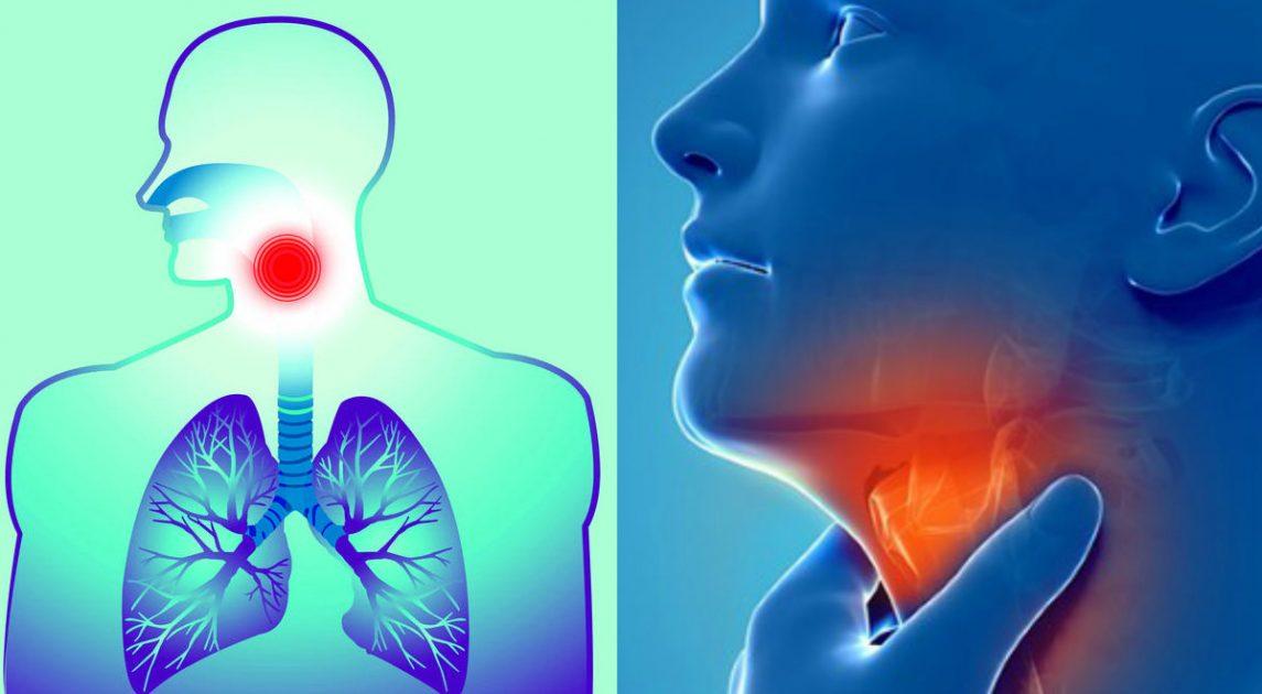 Las causas de la fiebre, dolor de cabeza y tos seca La fiebre es un síntoma común en una variedad de problemas de salud, pero el tratamiento está indicado
