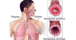 Bronquitis Asmática