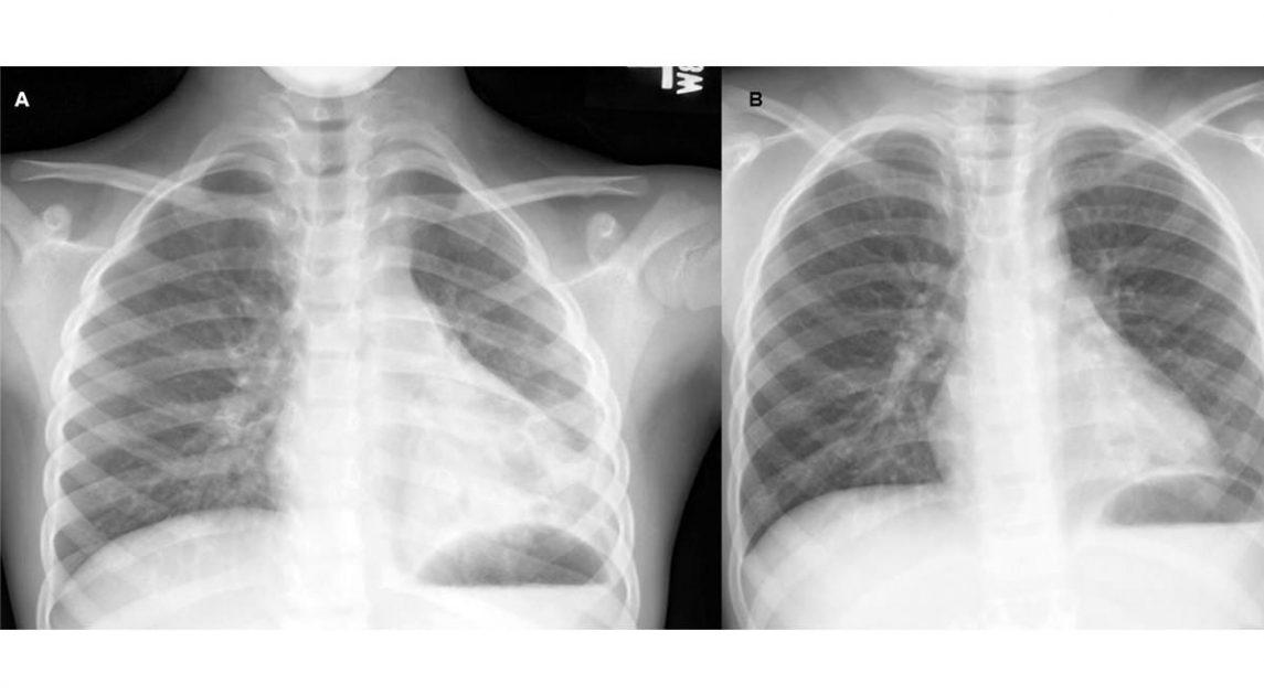 Bronquitis Plástica