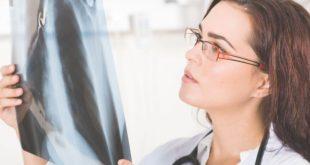 enfisema y bronquitis crónica
