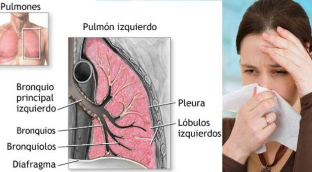 síntomas bronquitis crónica